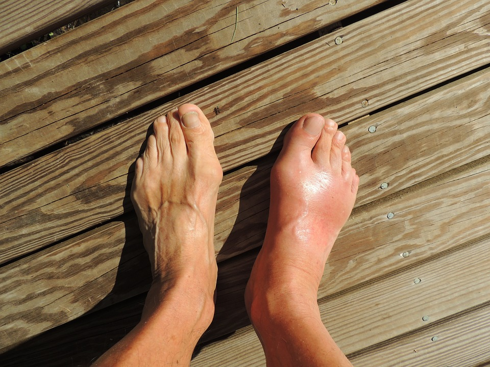 How to Manage Gout Flare-Ups